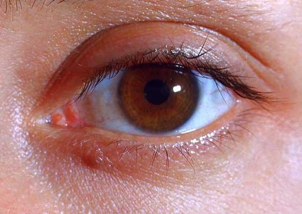 Это глаз.