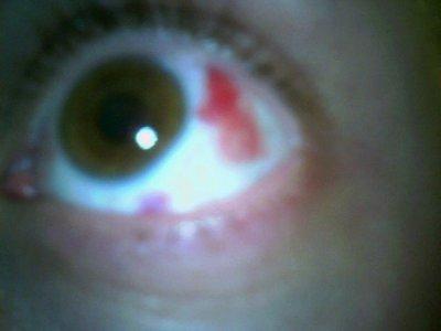 Сколько стоят линзы для глаз цветные не для зрения