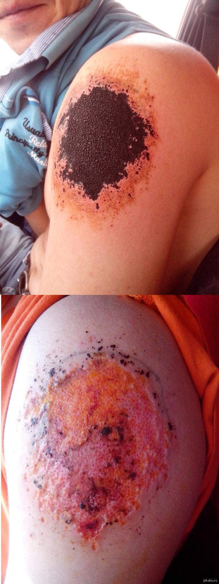 Как в домашних условиях избавиться от татуировки в домашних условиях быстро