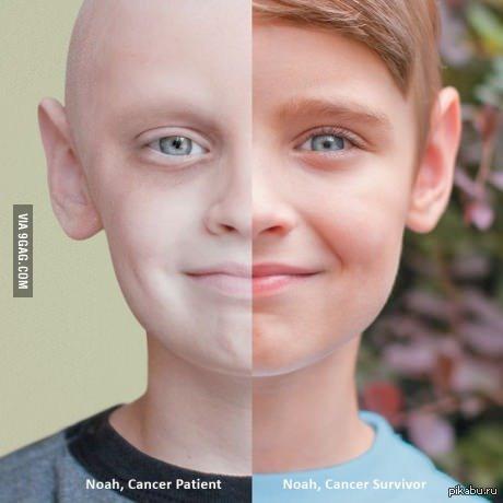 победим рак фото