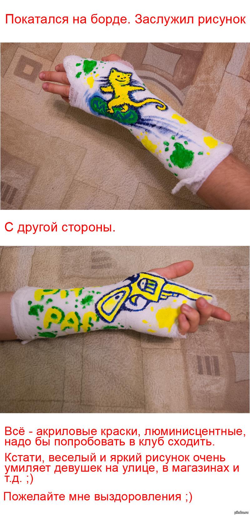 Фото рука з гіпсом 10 фотография