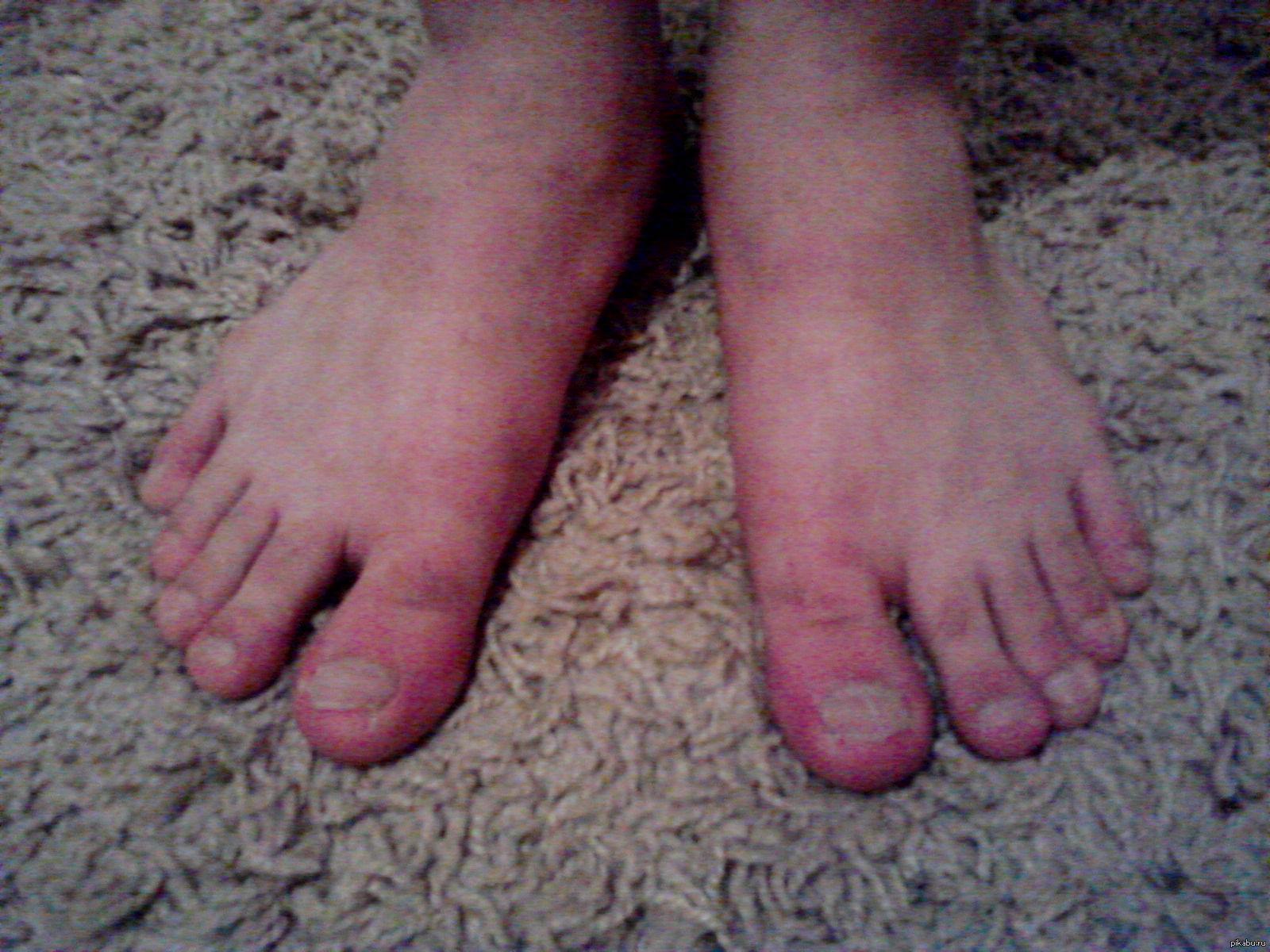 Сперма у девочки на пальцах ног фото 21 фотография